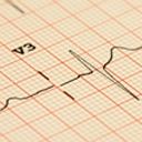 Lecture rapide de l'ECG