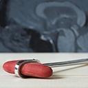 Examen clinique sommaire de l'adulte : système neurologique