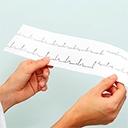 ABC des arythmies cardiaques