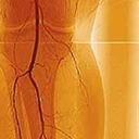 Ulcères artériels aux membres inférieurs, parties 1 et 2