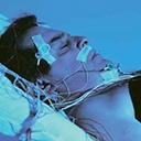Apnée obstructive du sommeil