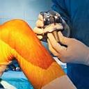 Arthroplastie totale du genou - partie 1. Approches anesthésiques