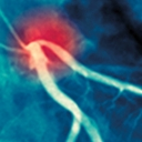 Syndrome coronarien aigu et rôle de l'infirmière - partie 1