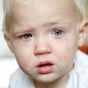 Douleur aiguë pédiatrique