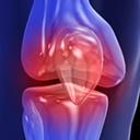 Évaluation du genou : application de la règle d'Ottawa